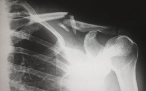 Shoulder Injuries in GAA